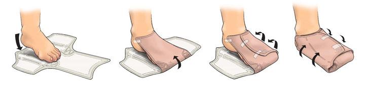 mode d'emploi du pansement Eclypse Foot